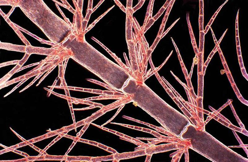 Les algues rouges sont rouges à cause du pigment phycoérythrine, qui, avec la chlorophylle verte, permet aux algues de réaliser la photosynthèse et de transformer la lumière du soleil en énergie. (Arlene Wechezak / Nikon Small World)